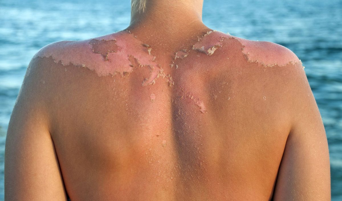 New Approach to Sunscreen Use